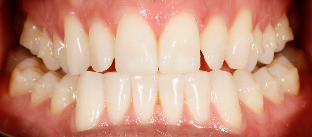 Bournemouth Straight Teeth, Teeth Straightening, Tooth Straightening, Invisalign in Bournemouth, Invisalign Attachments, Do I need Attachments, Invisible Braces, Clear Braces