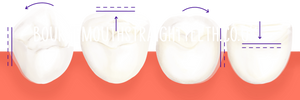 Teeth Overlap and Get Crowded Over Time