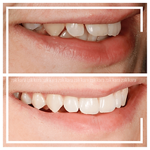Invisalign Bournemouth Crooked Teeth Bef