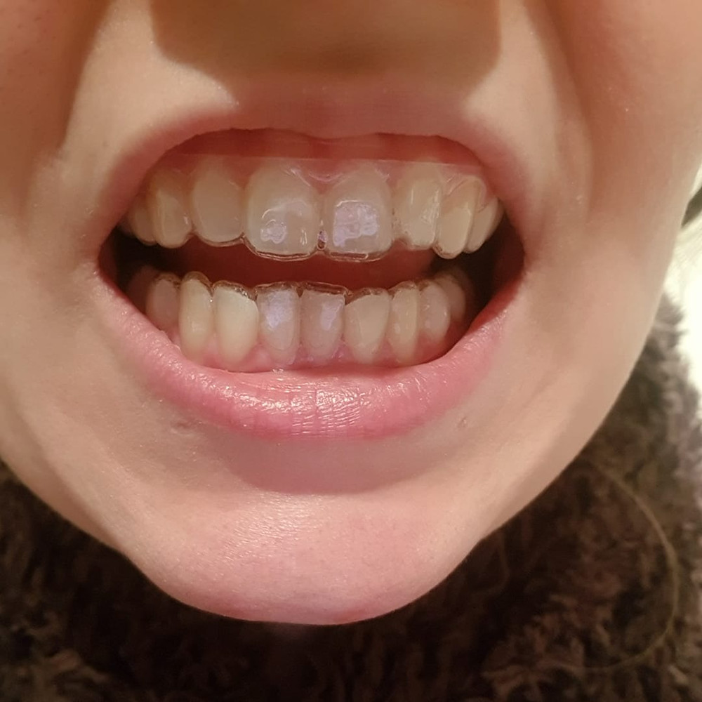 Why Don't My Aligners Fit as well as Invisalign