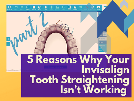5 Reasons Why Your Invisalign Tooth Straightening Isn't Working (Pt.2)