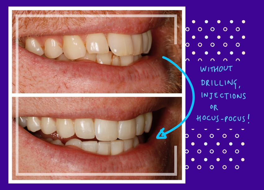 Teeth Straightening with Invisalign in Bournemouth, Composite Bonding and Ceramic Veneers options