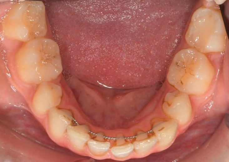 Teeth Overlap Even With A Fixed Hidden Retainer