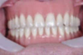 implant retained overdenture