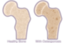 osteoporosis-bone-example.png