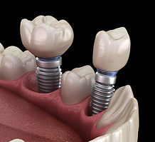 dentalimplantsss_edited.jpg