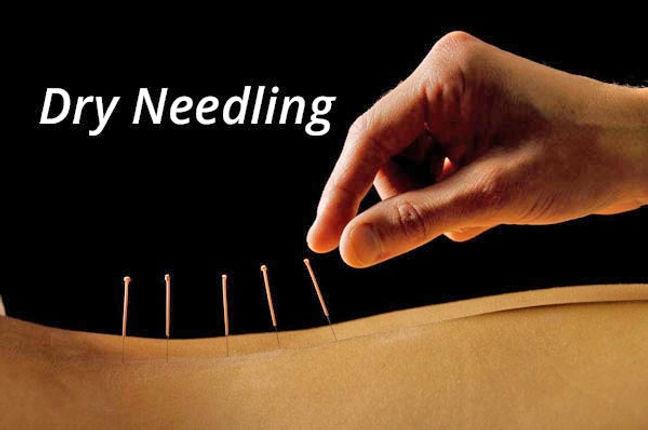 dry-needling.jpg