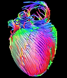 HeartDTI credit Open Labs.PNG