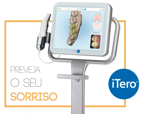 iTero Scanner Intraoral