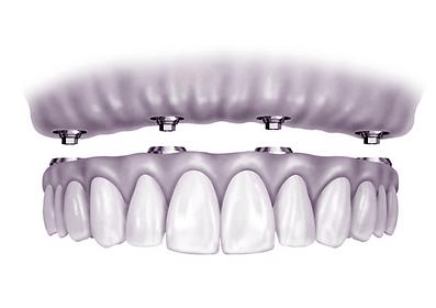 Dentes Fixos sobre implantes