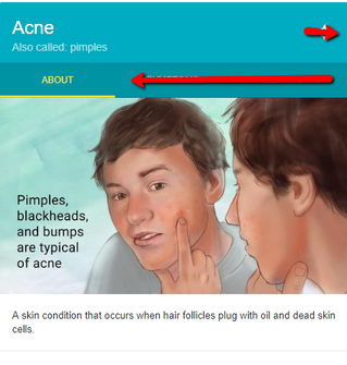 Acne - Treating without prescriptions