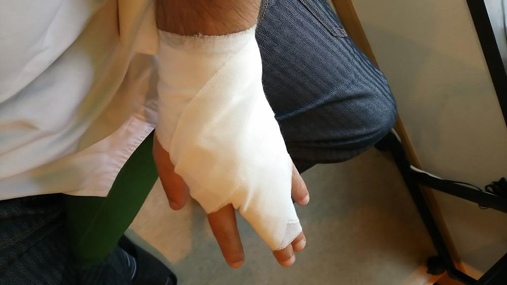 手の甲から包帯固定の画像