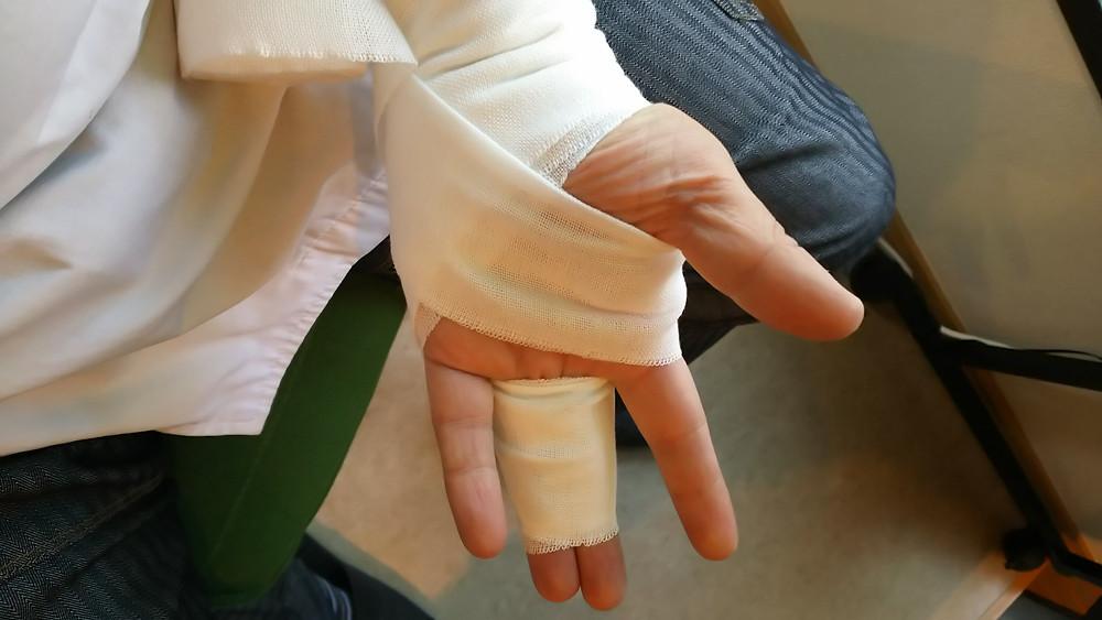 手のひらから包帯固定の画像