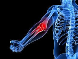 Photo image of elbow pain