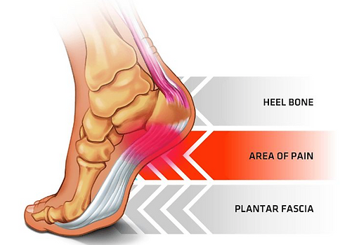 Skeletal image of foot to show plantar fascittis