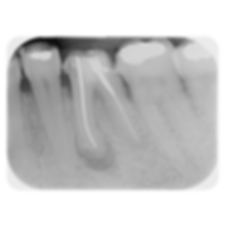 root canal retreatment lower bottom molar silver point removal post removal infection periapical lesion radiograph xray