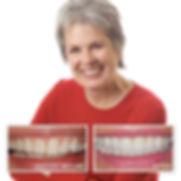 הלבנת שיניים, ציפוי חרסינה לשיניים לפני ואחרי