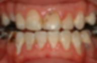 ציחצוח שיניים, יישור שיניים