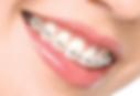 יישור שיניים למבוגרים, מומחה