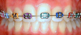 oral+hygiene+%284%29.jpg