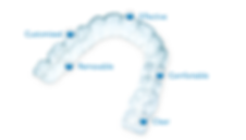 אינויזליין | יישור שיניים אינויזליין