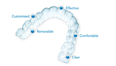 אינויזליין   יישור שיניים אינויזליין
