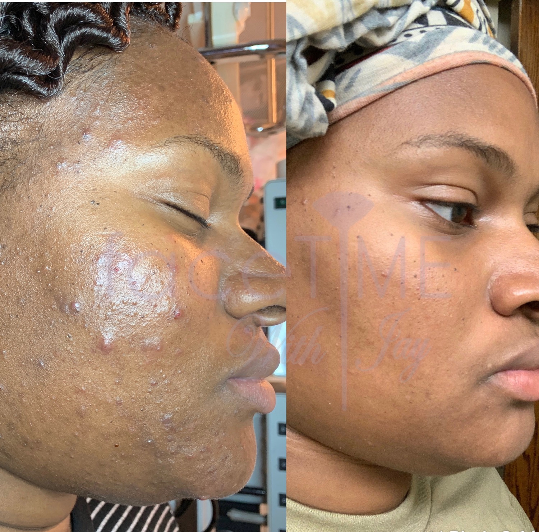Trio facial treatment