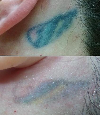 Post 9 treatments