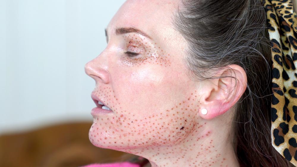 Natural Kaos Left side of face after plasma fibroblast treatment