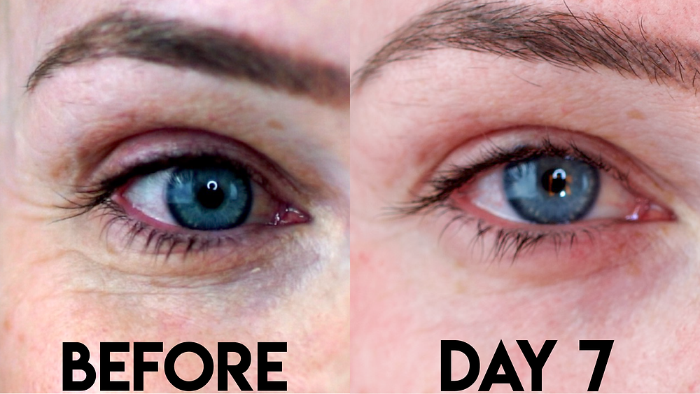These are the results from my first experience with Plasma Fibroblasting.