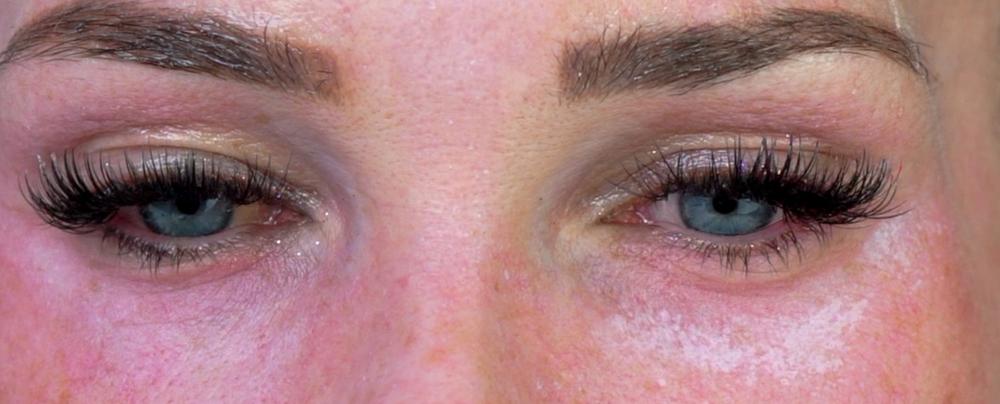 Under eye TCA acid