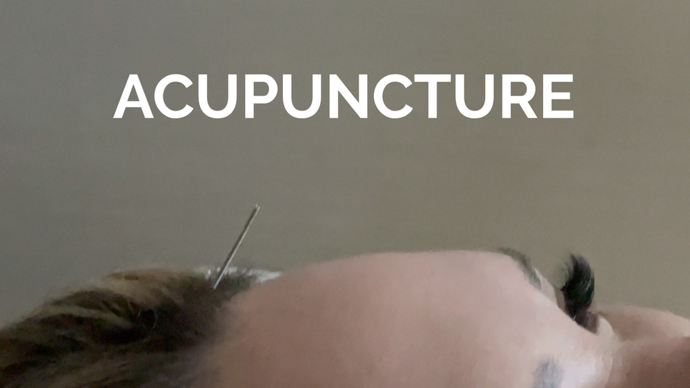 Natural Kaos Acupuncture at Sanctuary Spa