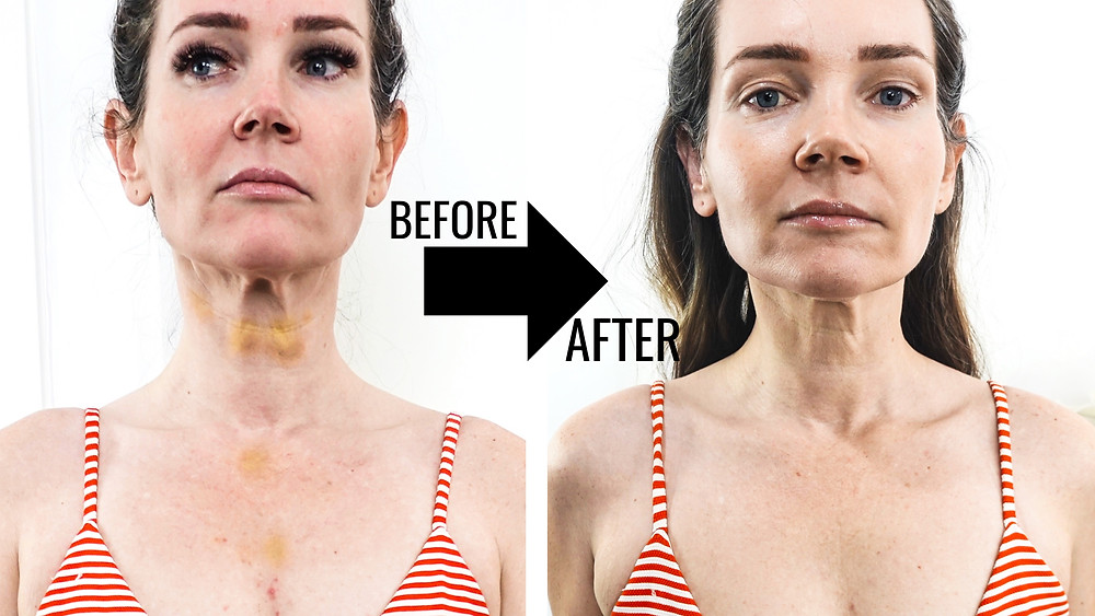 Natural Kaos Before and after Omnilux LED Neck & Chest Mask