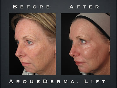 Ad. photo for the ArqueDerma filler technique given to Livia to advertise this specific technique of filler injection to sell to her own clients.