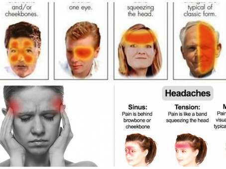 頭痛千百種,如何應對各種頭痛
