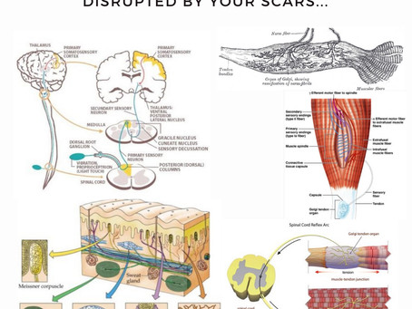Could your Scars be a cause of your Pain or Movement dysfunction?
