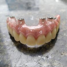 Dentadura Fixa.png
