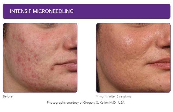 Intesif acne scar images.jpg