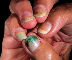 Bacterial Nail Infection