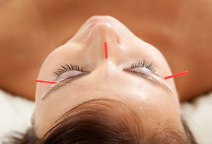 Anti-aging acupuncture treatment on youn