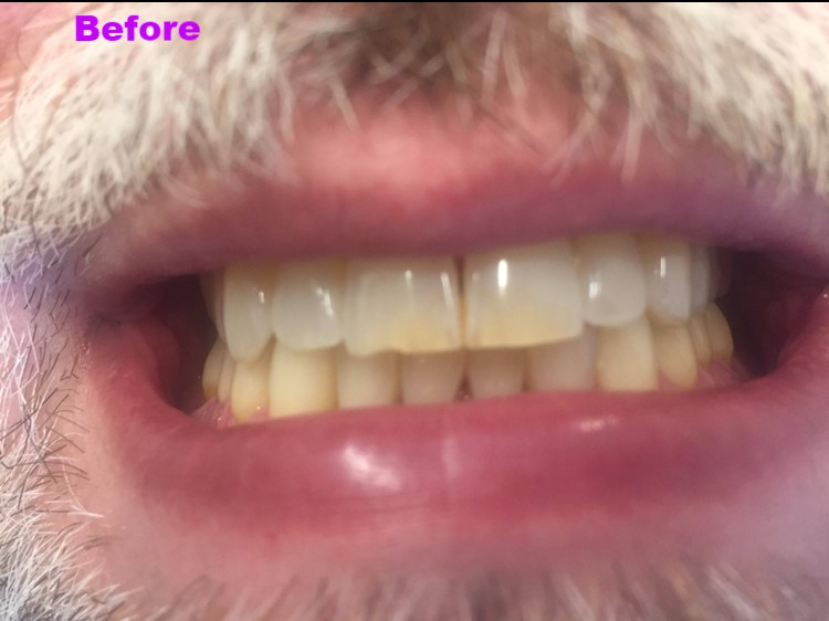 before photo, teeth, mouth close-up, dental
