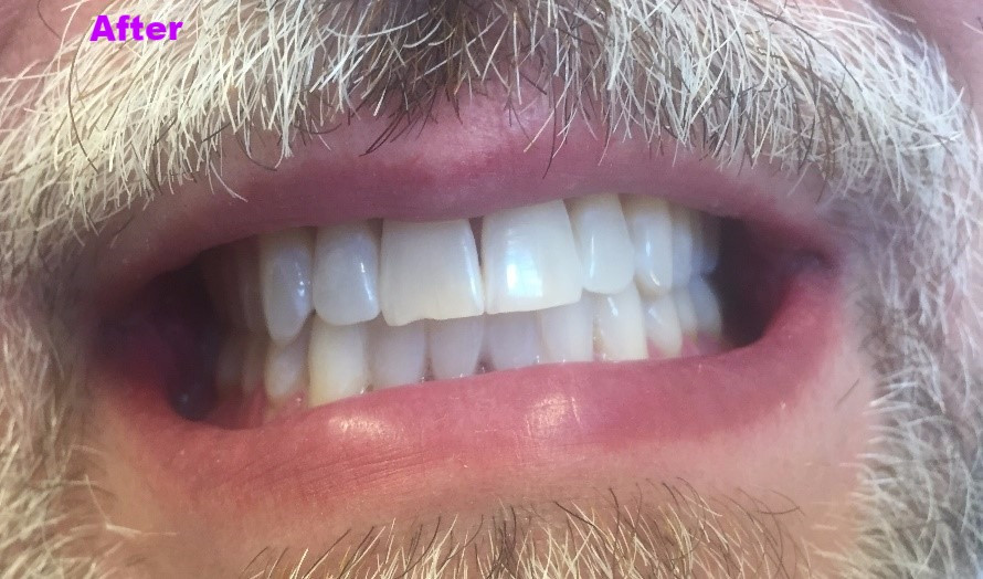 after photo, teeth, mouth close-up, dental, zoom, teeth whitening, bleaching