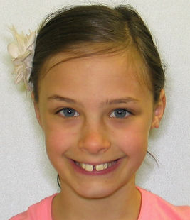 Before-picture of patient at Bedont Orthodontics prior to treatment