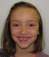 Guinn, R. before smile.jpg