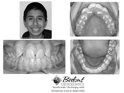 Before treatment at Bedont Orthodontics