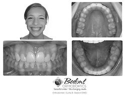 After Treatment at Bedont Orthodontics pictures