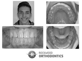 After orthodontic treatment at Rockwood Orthodontics