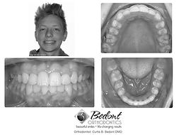 Jensen, A. Final BW - adolecent braces,