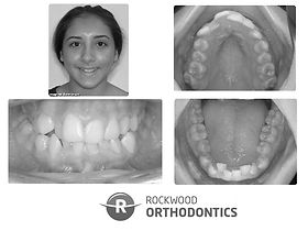 Before orthodontic treatment at Rockwood