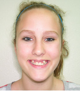 Before treatment at Bedont Orthodontics pictures